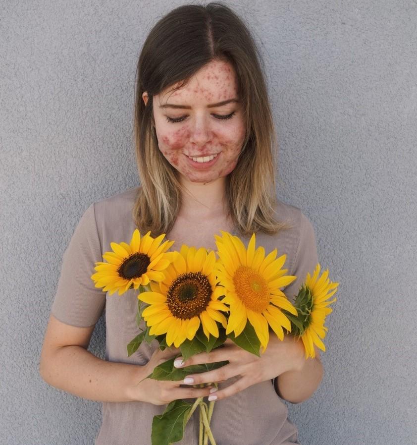 Bianca hält einen Strauß Sonnenblumen, auf den sie lächelnd hinunterschaut.